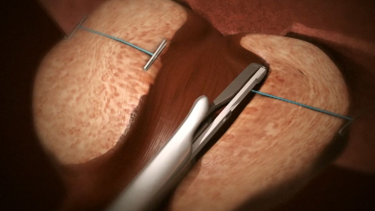 UroLift, cleared by FDA in 2013, is a technique that is an alternative to invasive surgery and medications. Instead it involves inserting implants that open up the prostate. This procedure can also be performed in an office with local anesthesia, and typically takes only an hour or less.