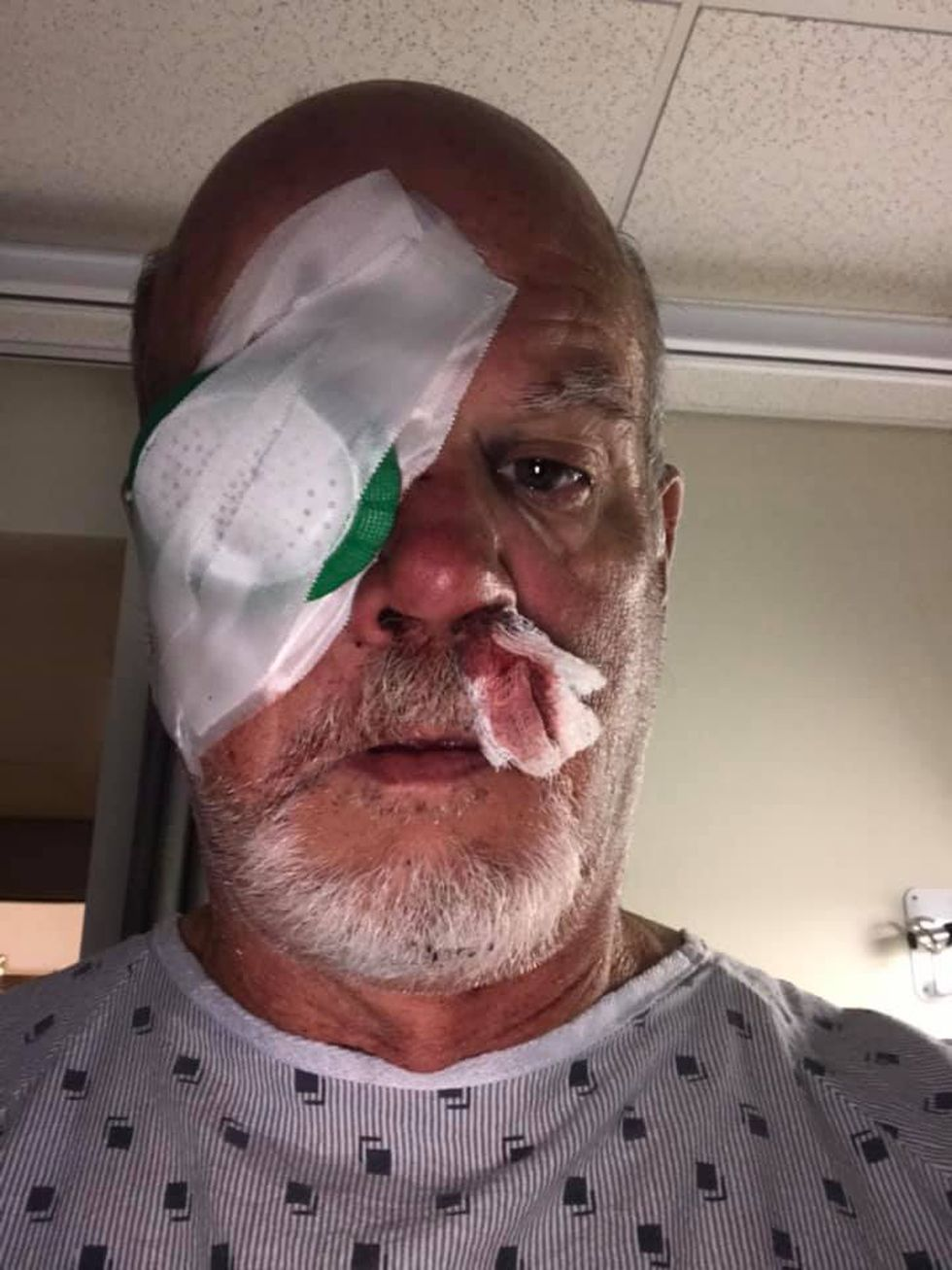 Ray Pulsifer, head coach of the Alaska Wild, was struck by a ball at practice prior to the Matson Invitational.